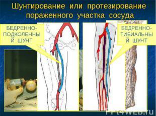 Шунтирование или протезирование пораженного участка сосуда АУТОВЕНОЗНОЕ ШУНТИРОВ