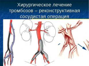 Хирургическое лечение тромбозов – реконструктивная сосудистая операция
