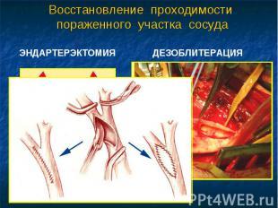 Восстановление проходимости пораженного участка сосуда ЭНДАРТЕРЭКТОМИЯ ДЕЗОБЛИТЕ