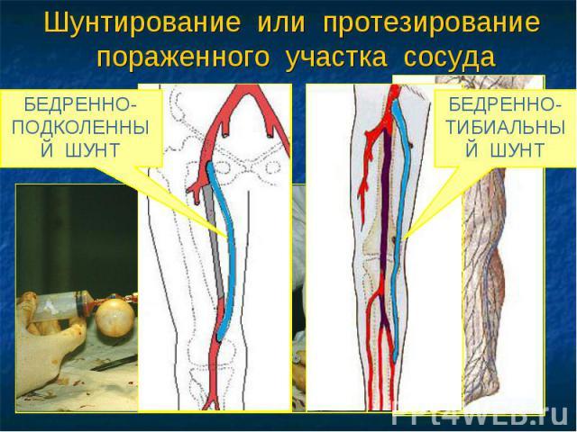 Шунтирование или протезирование пораженного участка сосуда АУТОВЕНОЗНОЕ ШУНТИРОВАНИЕ БЕДРЕННО-ПОДКОЛЕННЫЙ ШУНТ БЕДРЕННО-ТИБИАЛЬНЫЙ ШУНТ