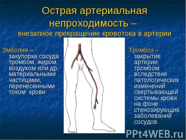 Острая артериальная непроходимость – внезапное прекращение кровотока в артерии Эмболия – закупорка сосуда тромбом, жиром, воздухом или др. материальными частицами, перенесенными током крови Тромбоз – закрытие артерии тромбом вследствие патологически…