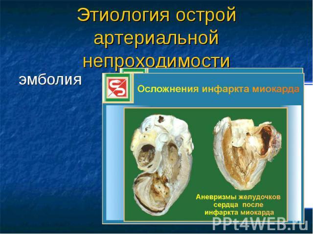 Этиология острой артериальной непроходимости эмболия