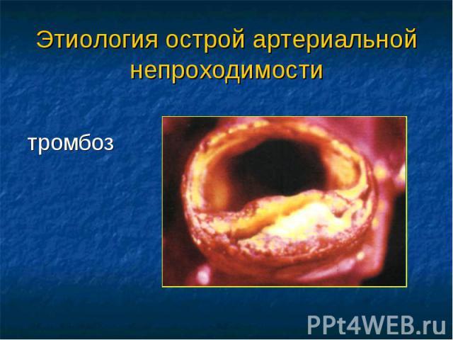 Этиология острой артериальной непроходимости тромбоз