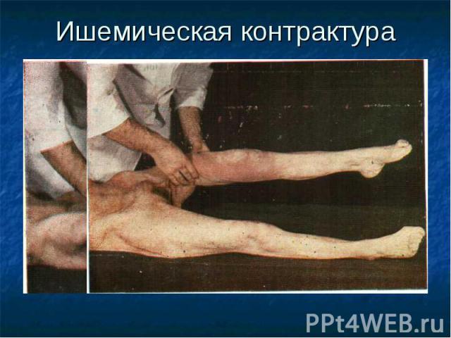Ишемическая контрактура