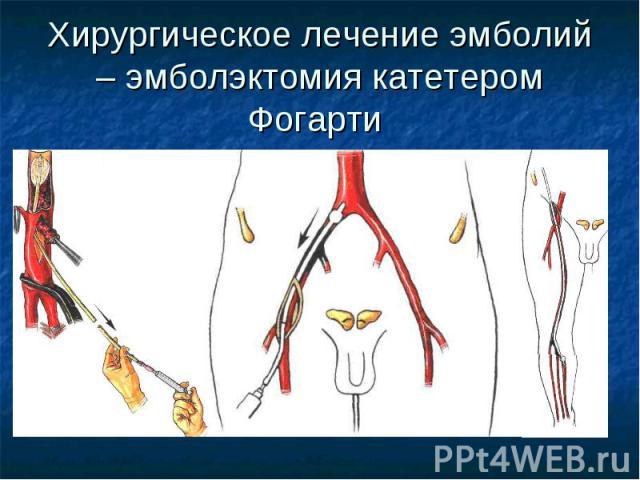 Хирургическое лечение эмболий – эмболэктомия катетером Фогарти