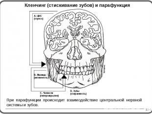 12-1 Кленчинг (стискивание зубов) и парафункция А. ЦНС (стресс) C. Челюсти (гипе