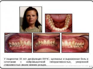 12-5 У пациентки 33 лет дисфункция ВНЧС, щелканье и выраженная боль в сочетании