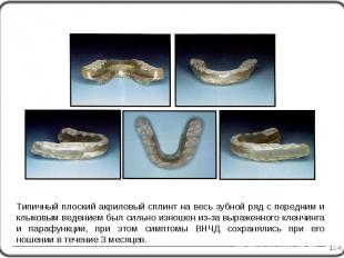 12-6 Типичный плоский акриловый сплинт на весь зубной ряд с передним и клыковым