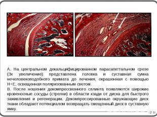 A. На центральном декальцифицированном парасагиттальном срезе (3х увеличение) пр
