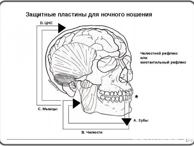 Челюстной рефлекс или миотактильный рефлекс 12-2 D. ЦНС A. Зубы Защитные пластины для ночного ношения B. Челюсти C. Мышцы