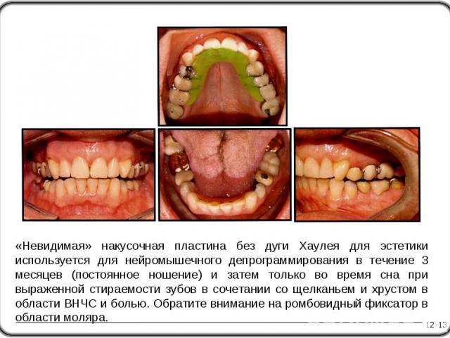 «Невидимая» накусочная пластина без дуги Хаулея для эстетики используется для нейромышечного депрограммирования в течение 3 месяцев (постоянное ношение) и затем только во время сна при выраженной стираемости зубов в сочетании со щелканьем и хрустом …