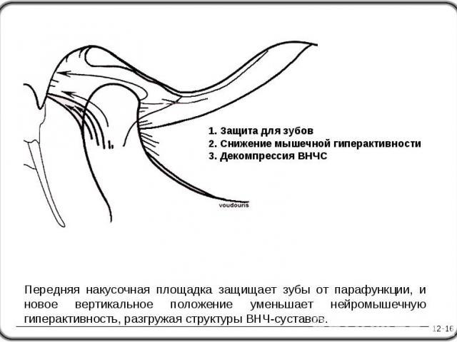 12-16 1. Защита для зубов 2. Снижение мышечной гиперактивности 3. Декомпрессия ВНЧС Передняя накусочная площадка защищает зубы от парафункции, и новое вертикальное положение уменьшает нейромышечную гиперактивность, разгружая структуры ВНЧ-суставов.