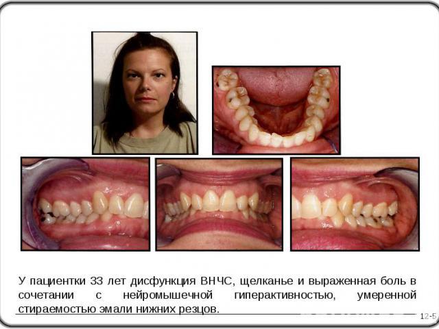 12-5 У пациентки 33 лет дисфункция ВНЧС, щелканье и выраженная боль в сочетании с нейромышечной гиперактивностью, умеренной стираемостью эмали нижних резцов.
