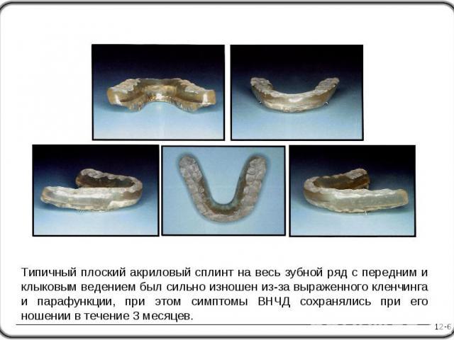 12-6 Типичный плоский акриловый сплинт на весь зубной ряд с передним и клыковым ведением был сильно изношен из-за выраженного кленчинга и парафункции, при этом симптомы ВНЧД сохранялись при его ношении в течение 3 месяцев.