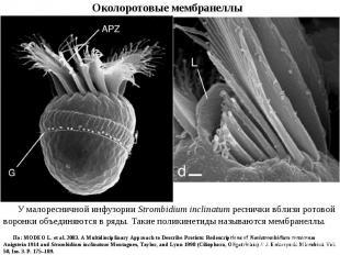 У малоресничной инфузории Strombidium inclinatum реснички вблизи ротовой воронки
