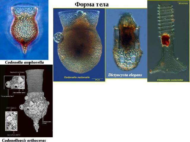 Dictyocysta elegans Codonellopsis orthoceras Codonella amphorella Форма тела