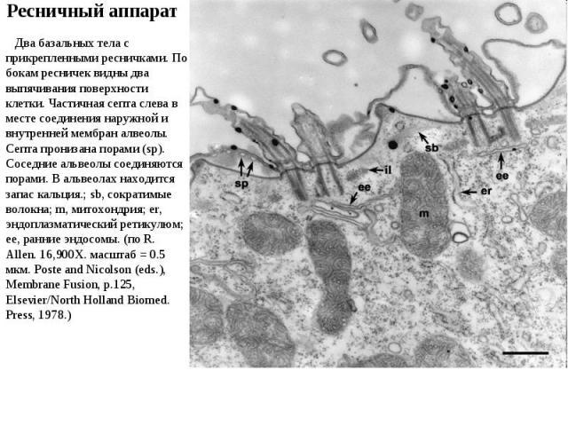Два базальных тела с прикрепленными ресничками. По бокам ресничек видны два выпячивания поверхности клетки. Частичная септа слева в месте соединения наружной и внутренней мембран алвеолы. Септа пронизана порами (sp). Соседние альвеолы соединяются по…