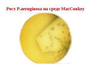 Рост P.aeruginosa на среде MacConkey