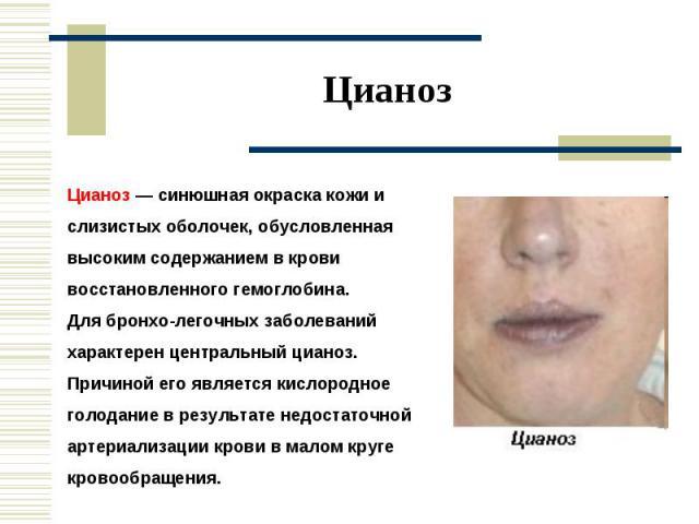 Цианоз Цианоз — синюшная окраска кожи и слизистых оболочек, обусловленная высоким содержанием в крови восстановленного гемоглобина. Для бронхо-легочных заболеваний характерен центральный цианоз. Причиной его является кислородное голодание в результа…