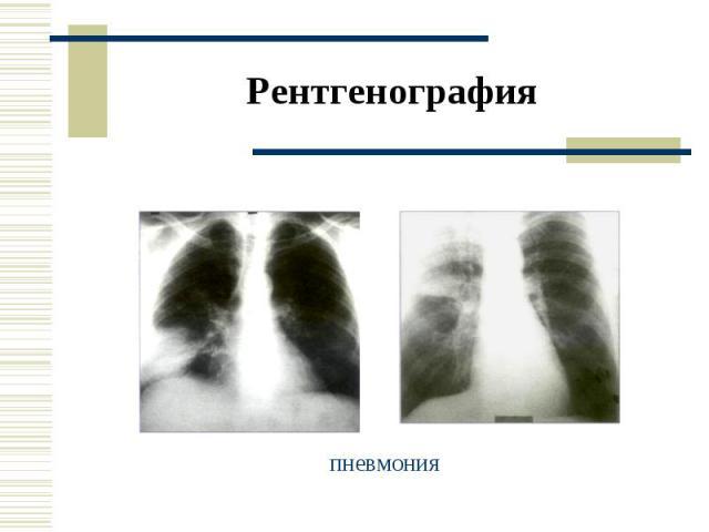 Рентгенография пневмония