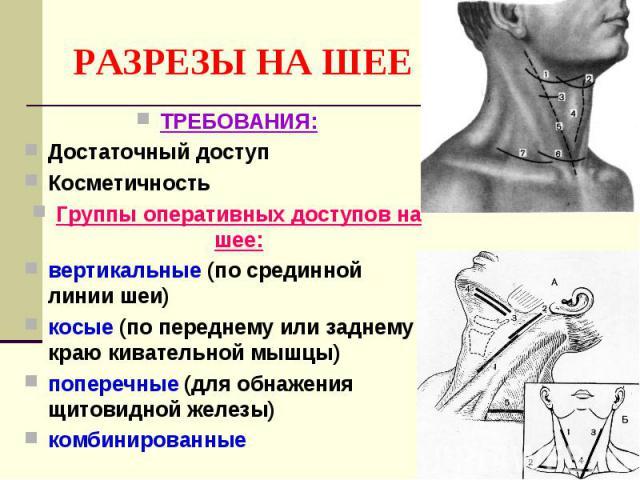 РАЗРЕЗЫ НА ШЕЕ ТРЕБОВАНИЯ: Достаточный доступ Косметичность Группы оперативных доступов на шее: вертикальные (по срединной линии шеи) косые (по переднему или заднему краю кивательной мышцы) поперечные (для обнажения щитовидной железы) комбинированные