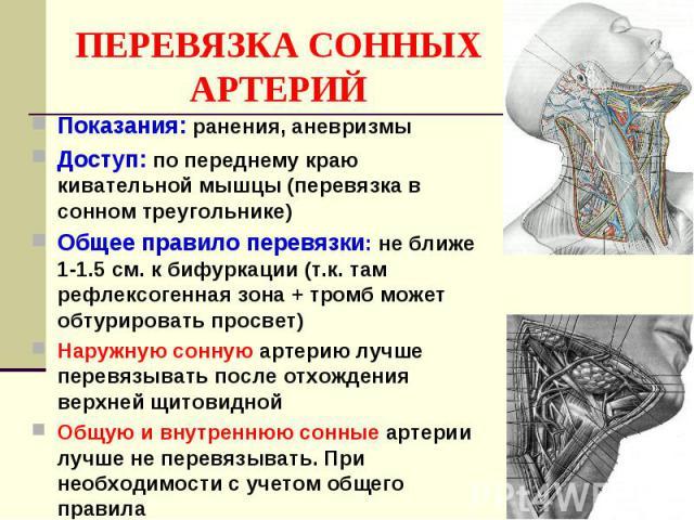 ПЕРЕВЯЗКА СОННЫХ АРТЕРИЙ Показания: ранения, аневризмы Доступ: по переднему краю кивательной мышцы (перевязка в сонном треугольнике) Общее правило перевязки: не ближе 1-1.5 см. к бифуркации (т.к. там рефлексогенная зона + тромб может обтурировать пр…