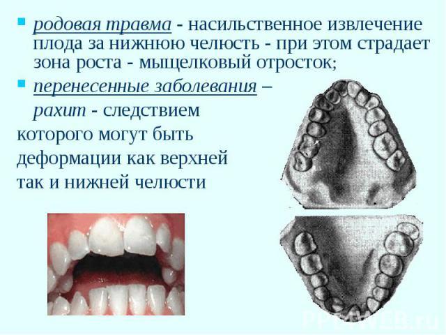 родовая травма - насильственное извлечение плода за нижнюю челюсть - при этом страдает зона роста - мыщелковый отросток; перенесенные заболевания – рахит - следствием которого могут быть деформации как верхней так и нижней челюсти