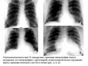 Рентгенологически при ГБ определяют признаки гипертрофии левого желудочка, его г