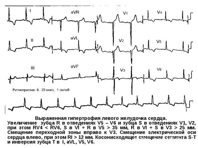 Выраженная гипертрофия левого желудочка сердца. Увеличение зубца R в отведениях V5 – V6 и зубца S в отведениях V1, V2, при этом RV4 < RV6, S в VI + R в V5 > 35 мм, R в VI + S в V3 > 25 мм. Смещение переходной зоны вправо к V3. Смещение электрической…