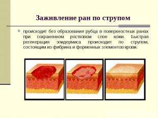 Заживление ран по струпом происходит без образования рубца в поверхностных ранах