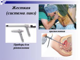 цистоскопия Приборы для ректоскопии Жесткая (система линз)