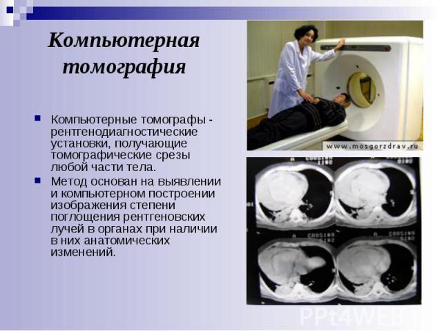 Компьютерная томография Компьютерные томографы - рентгенодиагностические установки, получающие томографические срезы любой части тела. Метод основан на выявлении и компьютерном построении изображения степени поглощения рентгеновских лучей в органах …