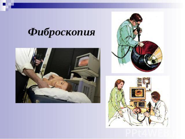 Фиброскопия