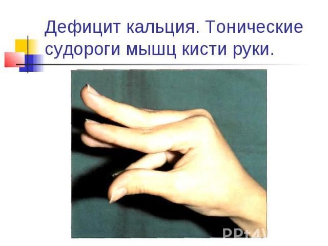 Дефицит кальция. Тонические судороги мышц кисти руки.