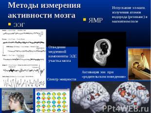 ЯМР Отведение медленной компоненты ЭДС участка мозга Испускание эл-магн. излучен