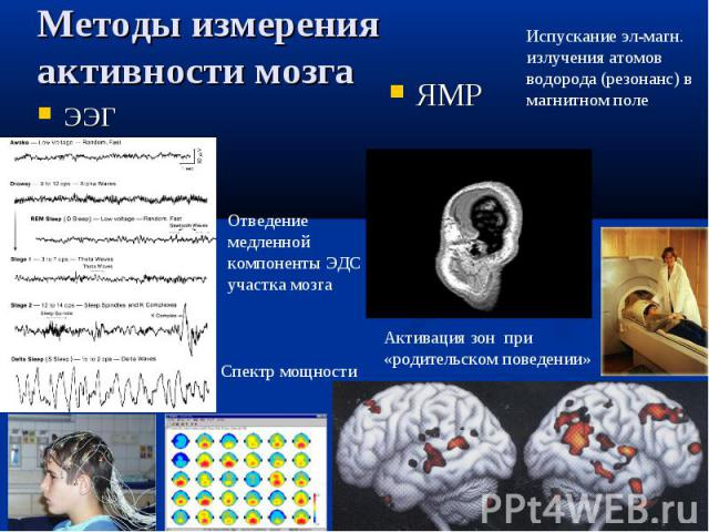 ЯМР Отведение медленной компоненты ЭДС участка мозга Испускание эл-магн. излучения атомов водорода (резонанс) в магнитном поле Спектр мощности Активация зон при «родительском поведении» Методы измерения активности мозга ЭЭГ