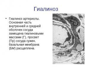 Гиалиноз Гиалиноз артериолы. Основная часть внутренней и средней оболочек сосуда