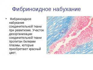 Фибриноидное набухание Фибриноидное набухание соединительной ткани при ревмтизме