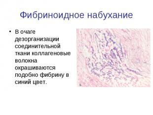 Фибриноидное набухание В очаге дезорганизации соединительной ткани коллагеновые