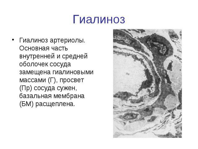 Гиалиноз Гиалиноз артериолы. Основная часть внутренней и средней оболочек сосуда замещена гиалиновыми массами (Г), просвет (Пр) сосуда сужен, базальная мембрана (БМ) расщеплена.