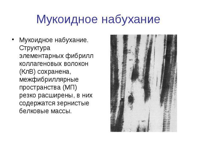 Мукоидное набухание Мукоидное набухание. Структура элементарных фибрилл коллагеновых волокон (КлВ) сохранена, межфибриллярные пространства (МП) резко расширены, в них содержатся зернистые белковые массы.