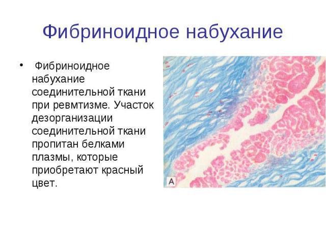 Фибриноидное набухание Фибриноидное набухание соединительной ткани при ревмтизме. Участок дезорганизации соединительной ткани пропитан белками плазмы, которые приобретают красный цвет.