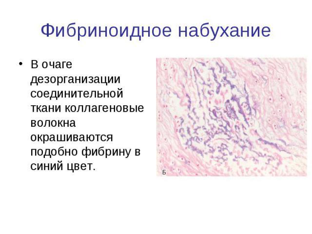 Фибриноидное набухание В очаге дезорганизации соединительной ткани коллагеновые волокна окрашиваются подобно фибрину в синий цвет.