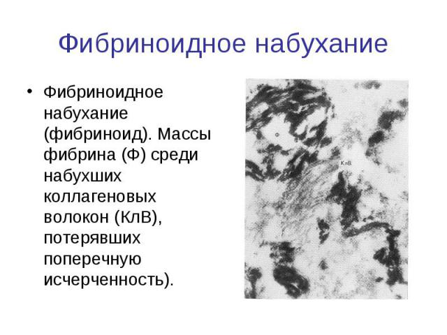 Фибриноидное набухание Фибриноидное набухание (фибриноид). Массы фибрина (Ф) среди набухших коллагеновых волокон (КлВ), потерявших поперечную исчерченность).