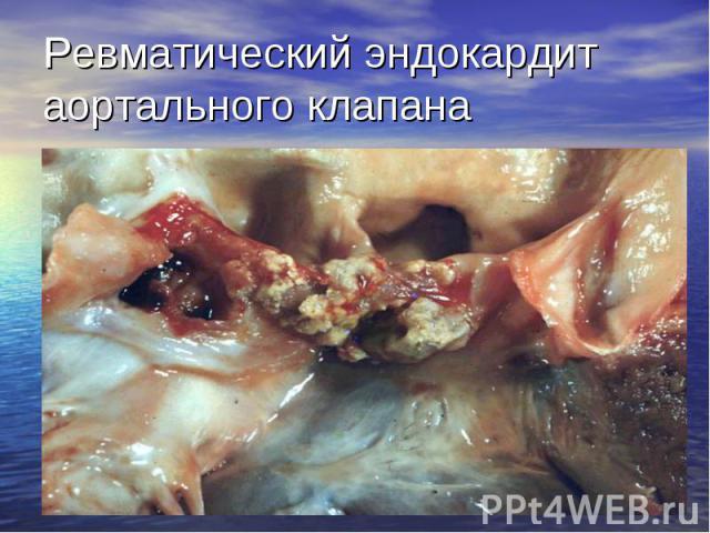 Ревматический эндокардит аортального клапана