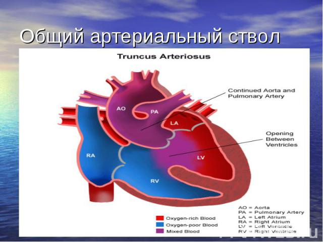 Общий артериальный ствол