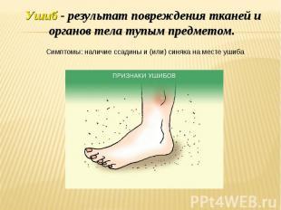 Ушиб - результат повреждения тканей и органов тела тупым предметом. Симптомы: на