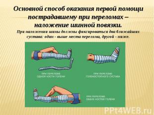 Основной способ оказания первой помощи пострадавшему при переломах – наложение ш