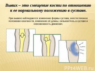 Вывих – это смещение кости по отношению к ее нормальному положению в суставе. Пр
