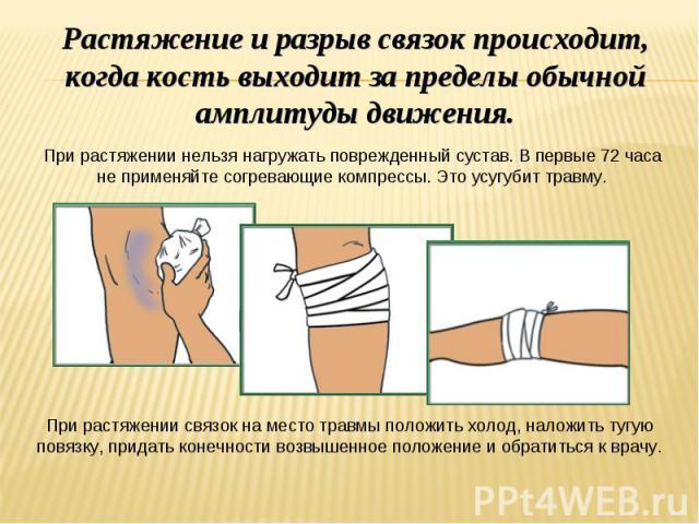 Растяжение и разрыв связок происходит, когда кость выходит за пределы обычной амплитуды движения. При растяжении нельзя нагружать поврежденный сустав. В первые 72 часа не применяйте согревающие компрессы. Это усугубит травму. При растяжении связок н…